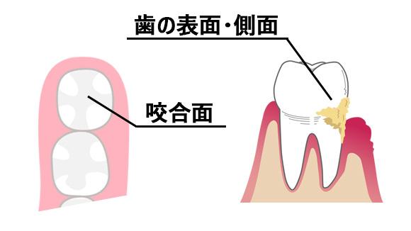 歯の咬合面